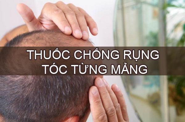 Thuốc chống rụng tóc từng mảng